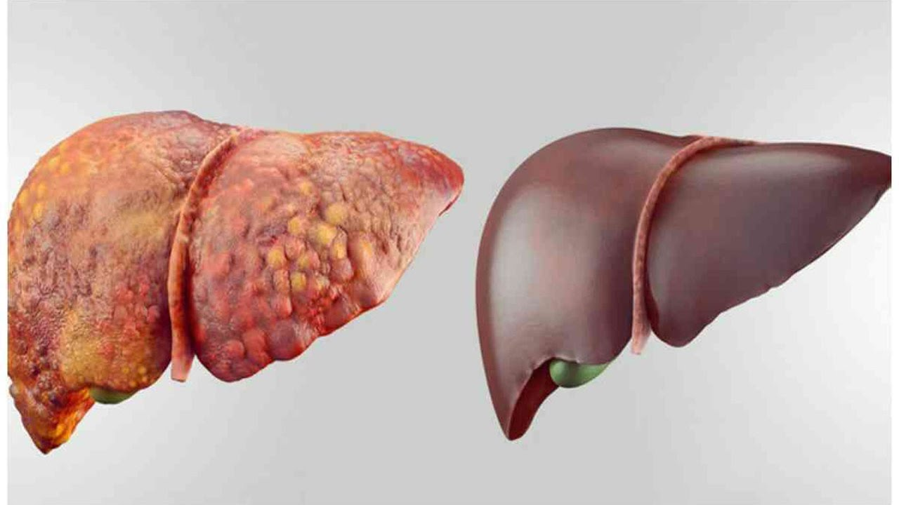 Why is it Important to Keep our Liver in Good Shape?